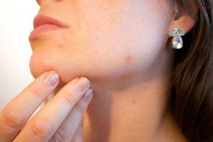 Anwendung Dermatologie